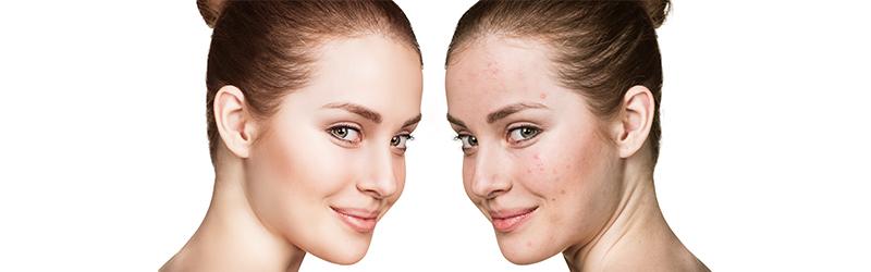 Acne Wrecker – Differin Gel with Retinol