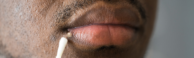 Why are Herpes Drugs So Expensive?