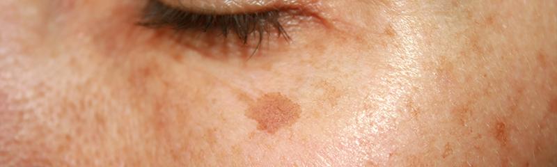 Lighten Dark Patches on Skin with Lustra