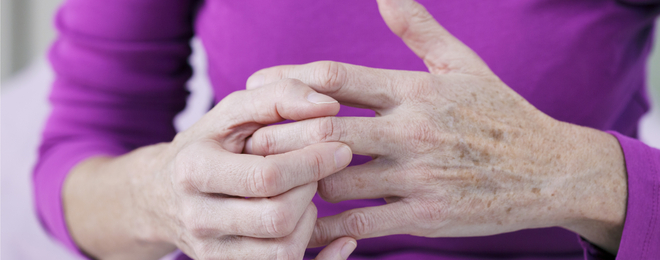 Is Rheumatoid Arthritis Hereditary? Here's What You Need to Know
