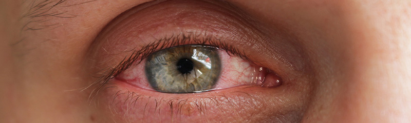 Pataday Eye Drops for Itchy Eye Relief