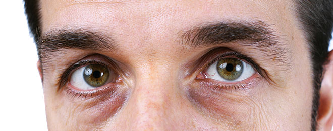 Put A Stop To Dark Circles Under Your Eyes