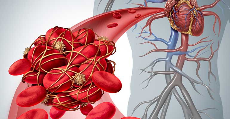 What Causes Blood Clots And What They Feel Like!