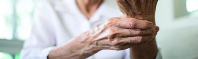 Most Popular Arthritis Medications